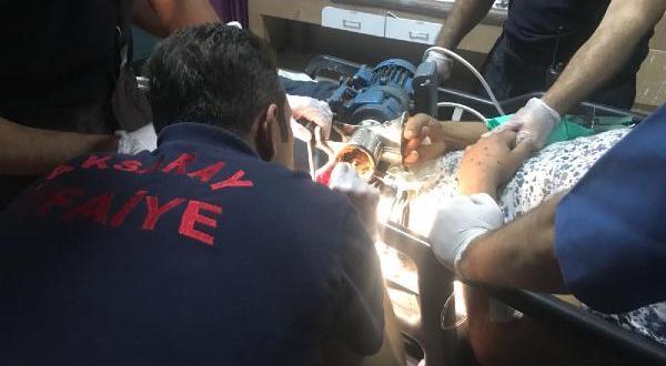 Aksaray'da Afgan çalışan elini kıyma makinesine kaptırdı