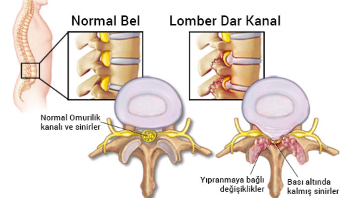 Bel bölgesinde omurilik daralmasında ameliyat seçenekleri nelerdir?